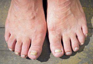爪水虫 両足の画像