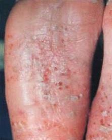 掌蹠膿疱症が足の裏にできる