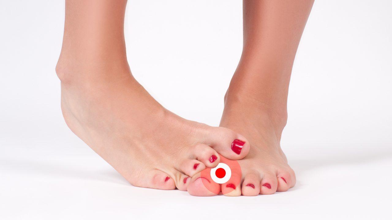 足の指の間が水虫でかゆい