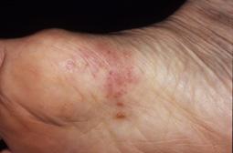 小水疱型水虫