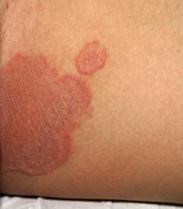 いんきんたむしの写真