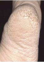 角質増殖型水虫1