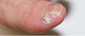遠位側縁爪甲下爪真菌症(DLSO)
