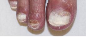 表在性白色爪真菌症(SWO)