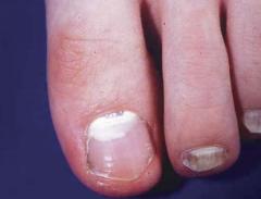 表在性白色爪真菌症(SWO)(はくしょくひょうざいがた)