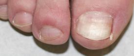 近位爪甲下爪真菌症(PSO)