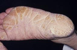 角質増殖型水虫